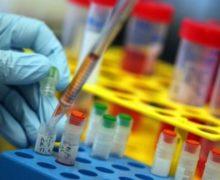 Ricerca: identificare Alzheimer e Parkinson con il laser